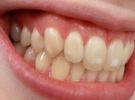 büyük, Dişlerin, Dişlerin sararmasında en büyük etkenler, en, etkenler, sararmasında